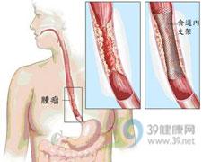 食管癌若并发贫血 先别化疗